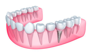 With dental implants from your cosmetic dentist in Roselle Park, you can enjoy a full smile.