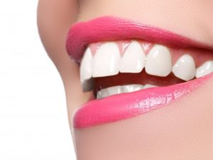 beautiful smile after correcting common cosmetic dental flaws