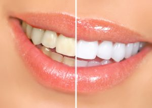 Before and after teeth whitening in Roselle Park.